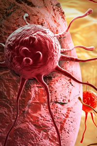 Cancer cells associated to RF-EMR exposure